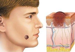 Меланома головы: локализация, развитие, диагностика и лечение фото
