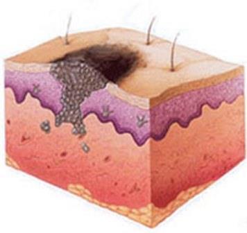 Прорастание меланомы внутрь кожных покровов и распространение метастазов