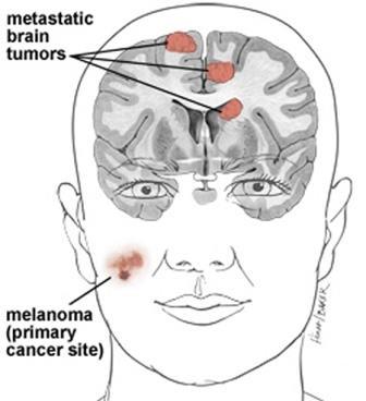 Метастазы в головном мозге – смертельное осложнение онкозаболевания