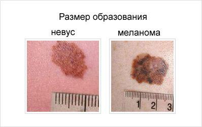 Озлокачествлению невусов способствуют солнечная радиация, травматизация, гормональные перестройки