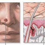 Реабилитация больных меланомой зависит от степени распространения болезни и методов лечения