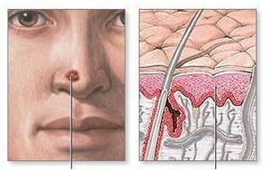 Реабилитация, восстановительное лечение и оценка трудоспособности больных меланомой фото