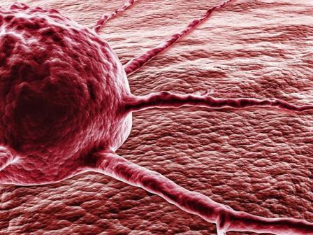 Диспансерное наблюдение призвано предотвратить возникновение новых злокачественных образований