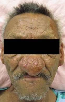 Лечение и профилактика ринофимы фото
