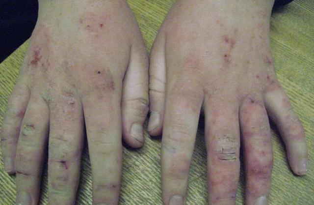 Профилактика при атопическом дерматите ребенка thumbnail