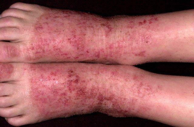 Ребенку с предрасположенностью к атопическому дерматиту лекарственная терапия должна назначаться только по четким и обоснованным показаниям