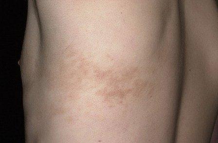 Если симптомы выражены слабо, может потребоваться биопсия, то есть изъятие поврежденного участка кожи
