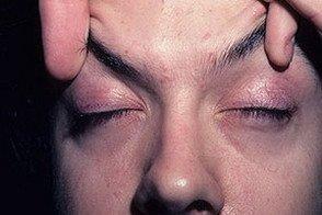 Дерматомиозит: смертельное заболевание с неизвестными причинами фото