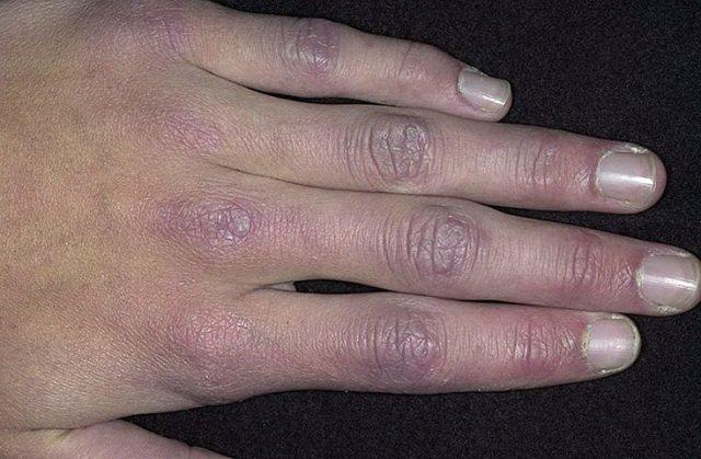 Отсутствие четкого понимания причин возникновения дерматомиозита дополняется описанными случаями исчезновения всех симптомов без специальной терапии