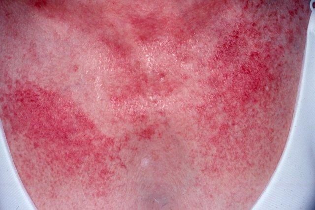 Дерматомиозит является комплексным заболеванием мышечной ткани неясного происхождения с характерными кожными проявлениями