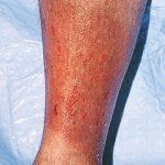 От варикозного дерматита страдает практически треть трудоспособного взрослого населения