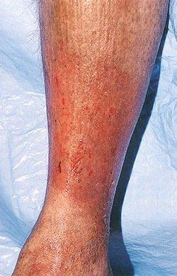 Чем опасен варикозный дерматит и можно ли его вылечить самостоятельно? фото
