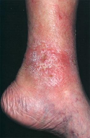Кожа в районах воспаления варикозных вен у страдающих варикозным дерматитом становится шершавой