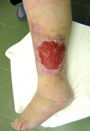 Часто появление трещин и язв приводит к проникновению бактериальной инфекции