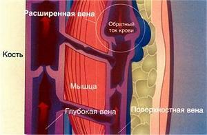 Компрессионное белье при варикозном дерматите фото