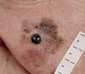 Злокачесвтенная меланома лентиго: особенности заболевания и лечения фото
