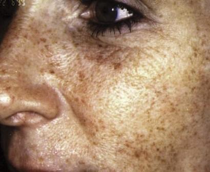 Заболевание может проявиться у любого человека, однако, в группе риска находятся люди со светлой кожей