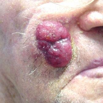 Нейроэндокринная карцинома кожи: симптомы, методы диагностики и лечения фото