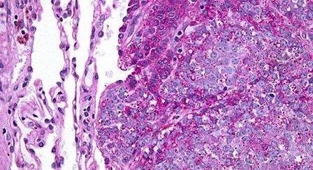 В опухолевых клетках были выделены нейросекреторные гранулы
