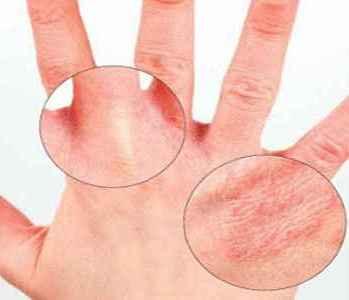 Существуют ли народные методы лечения аллергического дерматита? фото