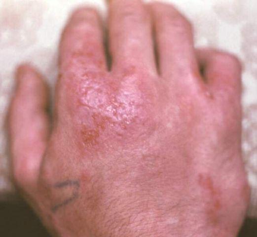 Народные средства лечения дерматита очень разнообразны и позволяют мягко, быстро и недорого снять такие симптомы заболевания, как зуд, высыпания, отеки