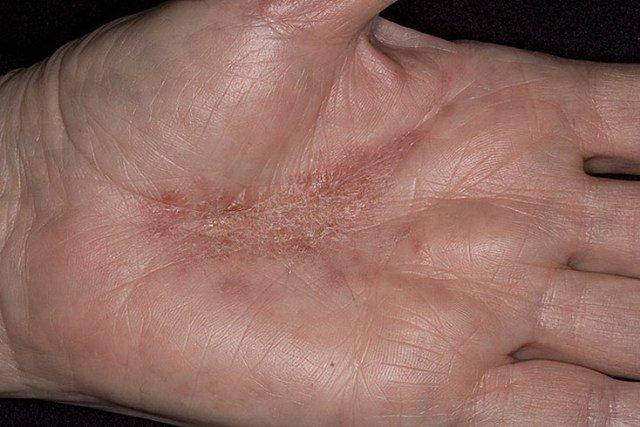 Аллергический дерматит – одно из самых распространенных заболеваний кожи