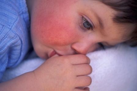 Покраснения на щёчках, появившиеся после приёма антибиотиков фото