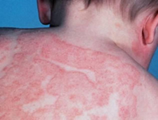 Антигистаминные средства чаще всего используют для лечения кожной аллергии