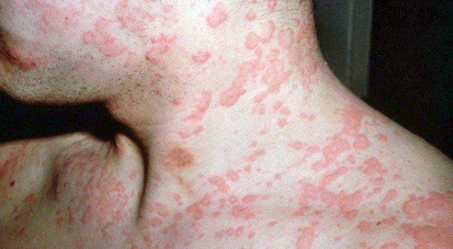 Для устранения симптомов кожной аллергии применяют различные медикаментозные препараты