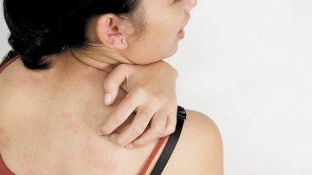 Аллергическая реакция организма на вещество-раздражитель обычно проявляется в течение 1 – 2 дней