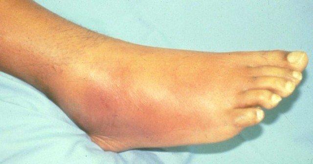 Если присутствует болезненность кожи, ее локальное покраснение, отечность, есть пузырьки и кровоизлияния – тянуть не стоит. Пора обратиться к специалисту