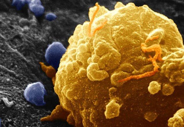Вакцинотерапия, криодеструкция и применение лазера успешно используются для удаления меланомы с кожного покрова, сводя к минимуму ущерб, наносимый здоровой коже и организму пациента в целом