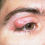 Вырезание или выдавливание липомы в домашних условиях (особенно на веке!) крайне опасно