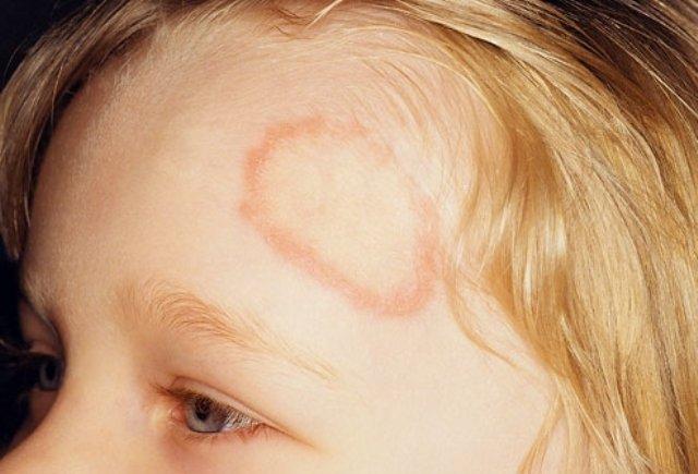 Следует отметить, что у детей лишай Жибера чаще всего возникает на фоне снижения иммунитета