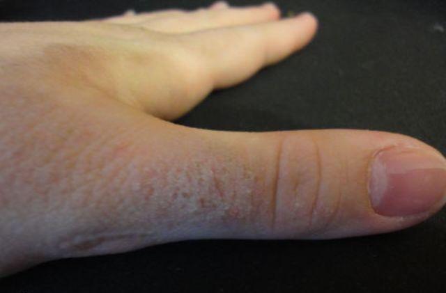 Аллергия на холод может иметь и более мягкие симптомы, но сказать наверняка проявятся ли они также впоследствии – нельзя