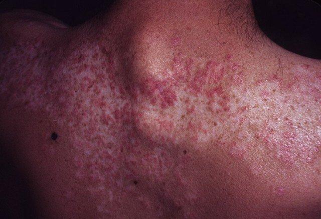 С 60-х годов в комплекс лечения были включены аминохинолиновые производные и цитостатические иммунодепрессанты