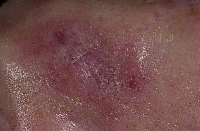 Красная волчанка представляет аутоиммунное заболевание, при котором иммунная система принимает ткани организма за чужеродные и атакует их