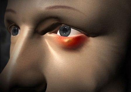 У меня часто бывает ячмень на глазу. Какие существуют эффективные способы его лечения и профилактики? фото