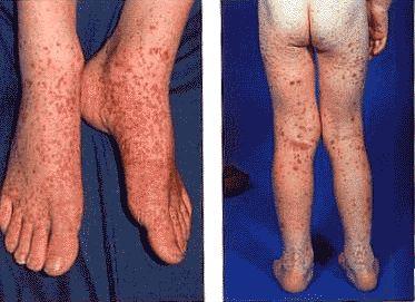 Геморрагический васкулит - это... Что такое Геморрагический васкулит?