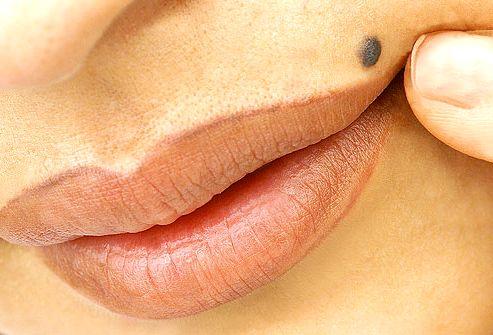 Родинка у женщины над губой