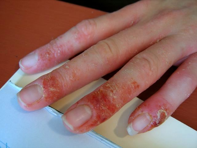 Основной симптом экземы - сыпь и зуд кожи