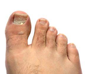 Лечение грибка ногтя: запущенная форма фото