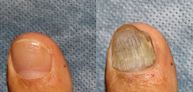 Лазерный метод лечения запущенной стадии грибка ногтей