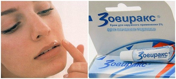 Мазь для лечения герпеса на губах при беременности