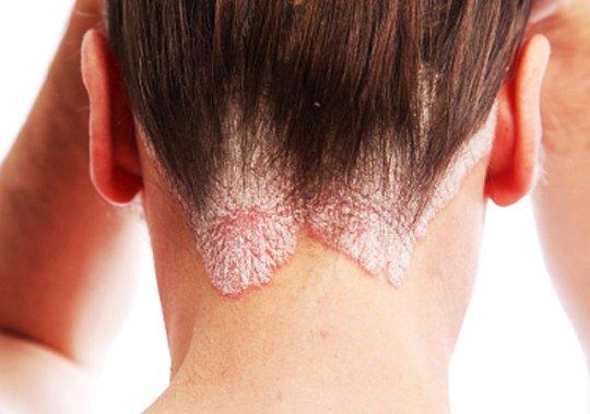 Заразен ли псориаз кожи для окружающих? Как предается псориаз