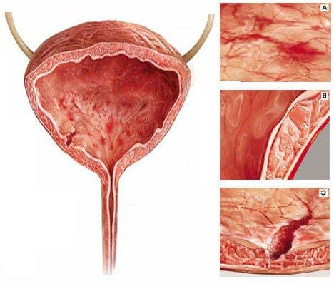 При цистите повреждается стенка мочевого пузыря.