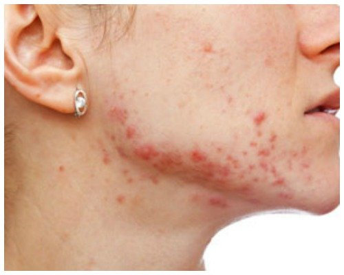 Симптомы подкожных прыщей на коже лица