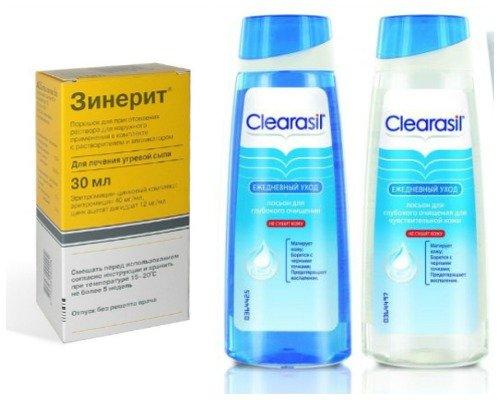 Лечение подкожных прыщей на коже лица