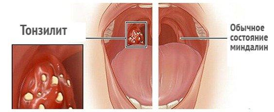 Стрептококк в горле