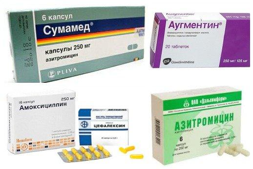 Антибиотики при стрептококковой инфекции в горле